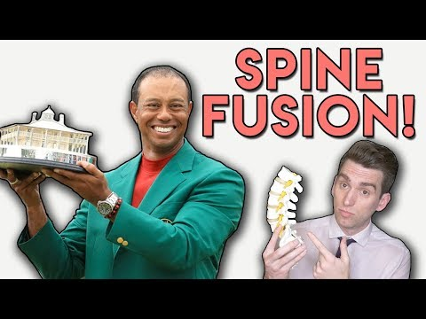 Tiger Woods SPINE FUSION Explained by Doctor!