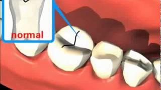 Лечение зубов имплантация в Москве Санкт-Петербурге европейское качество протезирование стоматология(, 2014-03-28T22:26:00.000Z)