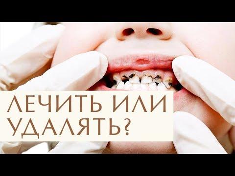 👧 Зачем лечить молочные зубы: рекомендации стоматолога. Зачем лечить молочные зубы. 12+