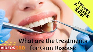 Now Trending - Gentle and Effective Gum Disease Treatment by Dr. Azeem Sheikh