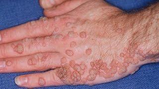 Tips Mencegah Tertular Penyakit HPV Pada Wanita Tips Mencegah Tertular Penyakit HPV Pada Wanita Tips.