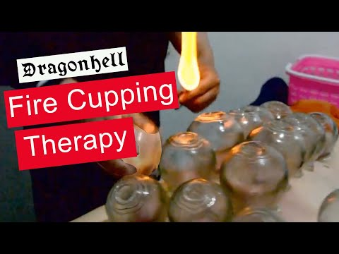 Fire Cupping therapy ✅ Master of Traditional Chinese Medicine TCM THS5STAR LingLingBW 🇺🇸
