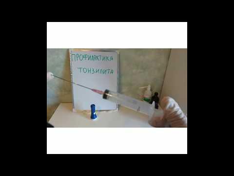 Промывание миндалин в домашних условиях шприцом отзывы