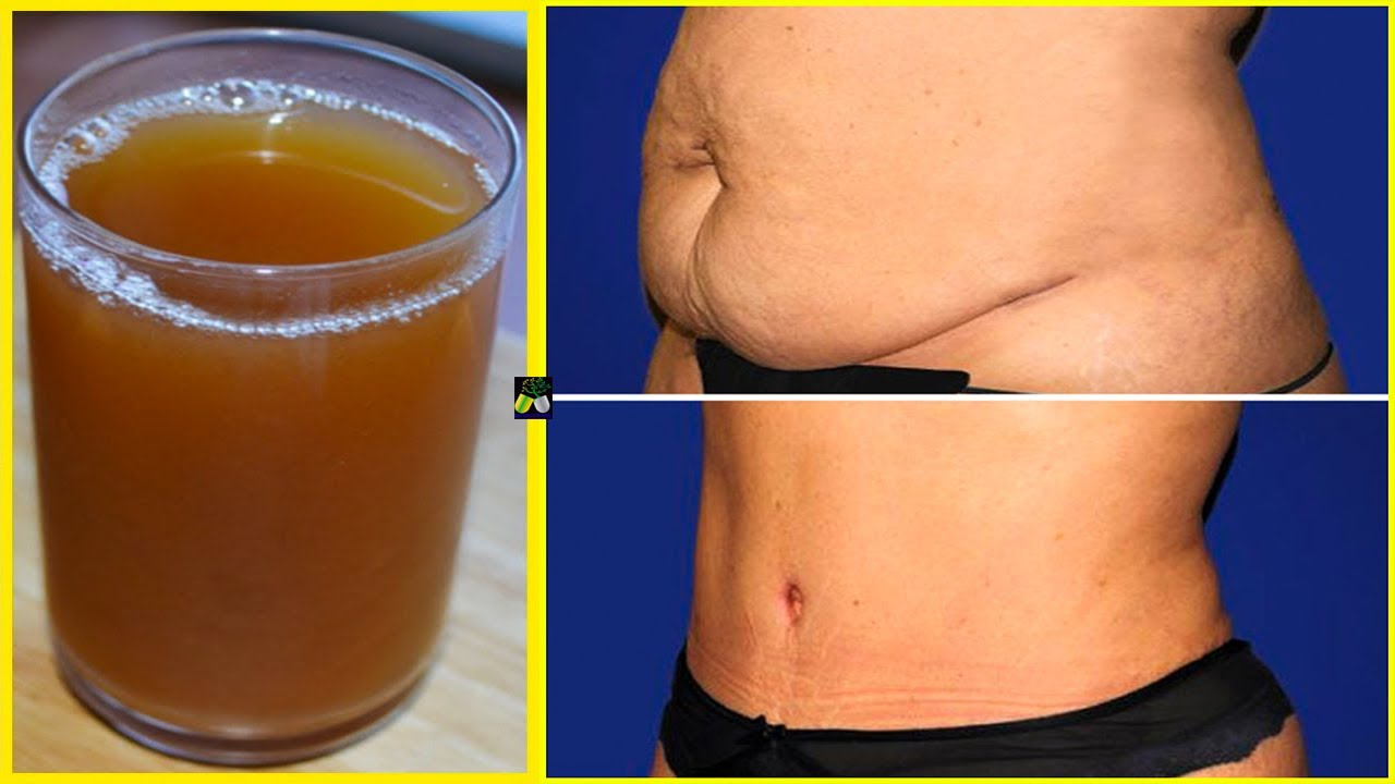 Before You Go To Bed, Drink This - Melt Fat And Remove Belly Fat Overnight - Fat Burner Lemon Tea