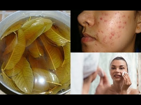 2-simple-ways-on-how-to-use-guava-leaves-for-acne