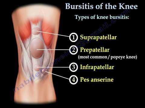 Knee Bursitis,prepatellar bursitis  - Everything You Need To Know - Dr. Nabil Ebraheim