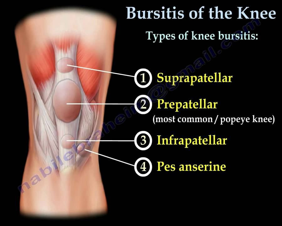 Knee bursitisprepatellar bursitis everything you need to know knee bursitisprepatellar bursitis everything you need to know dr nabil ebraheim youtube ccuart