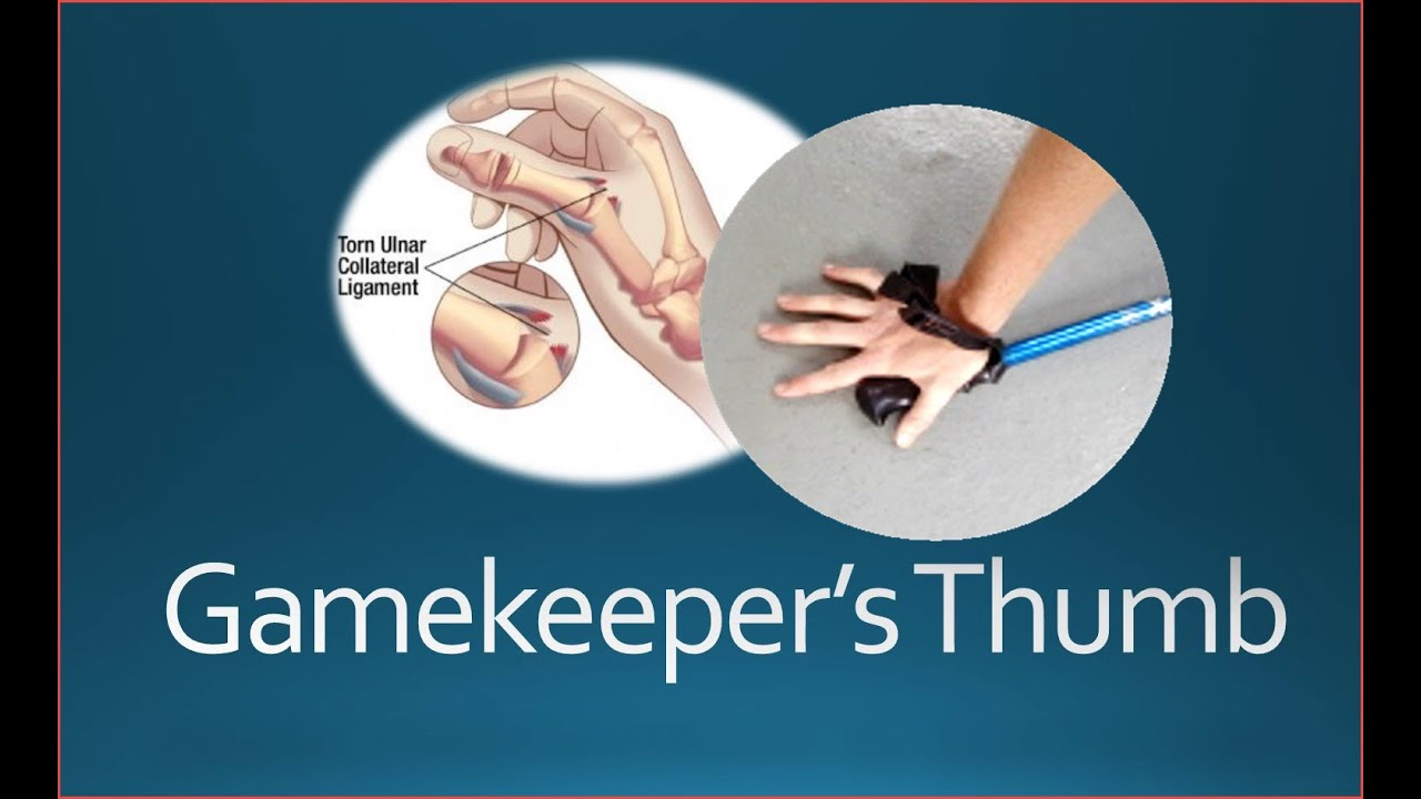 Gamekeeper's Thumb Injury - YouTube