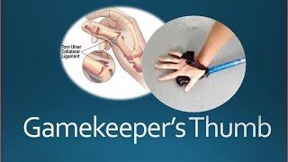 Gamekeeper's Thumb Injury