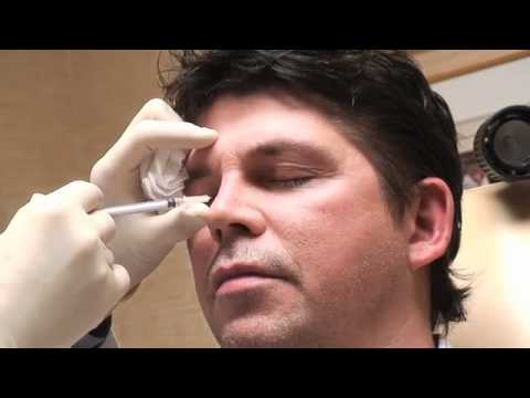 Permanent Non-Surgical Rhinoplasty With Dr. Robert Kotler