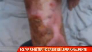 BOLIVIA REGISTRA 100 CASOS DE LEPRA ANUALMENTE