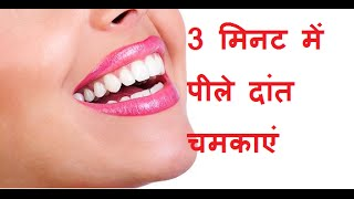 3  मिनट में पीले दांत चमकाएं  | How To Get Whiter Teeth In 3 Minute in hindi