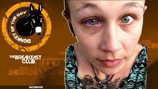 Model Gets Eye Ball Tattooed, Regrets It Immediately After Crying Purple Tears