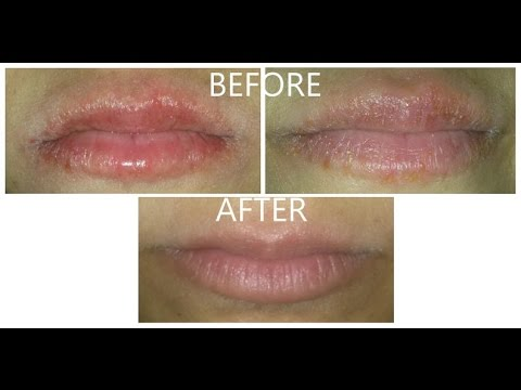 how to get chapped lips to stop burning