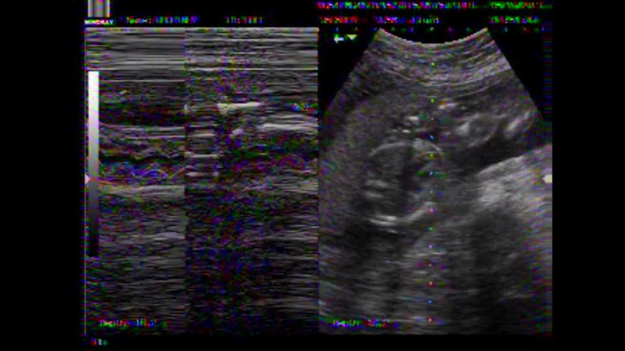 20 Week Anatomy Ultrasound - YouTube