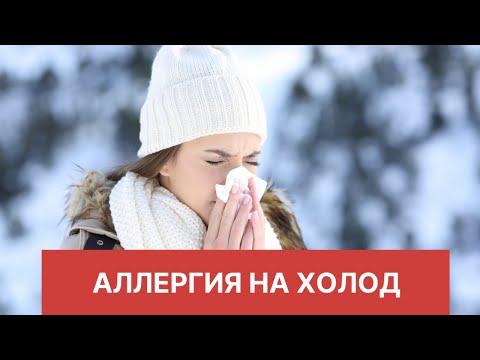 Аллергия на холод /холодовая  крапивница/ аллергия на мороз/ симптомы и лечение