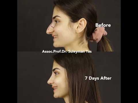 90° TAS Video | Before & 7 Days After Closed Rhinoplasty