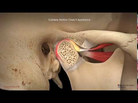 Carriere® Motion Clear™ Appliance for Class II with Clear Aligners Patient Education Animation