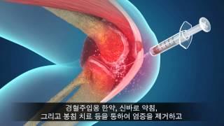 무릎관절염은 어떻게 치료하나요? 김현욱