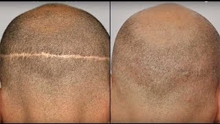Have Visible Strip (FUT Hair Transplant) Scars? You can now Fix it!