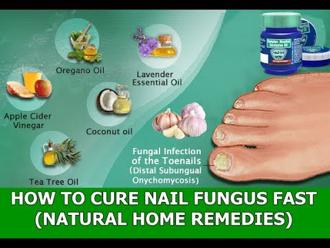 Toenail Fungus Natural Treatments How To Cure Fast And Naturally Home Remes