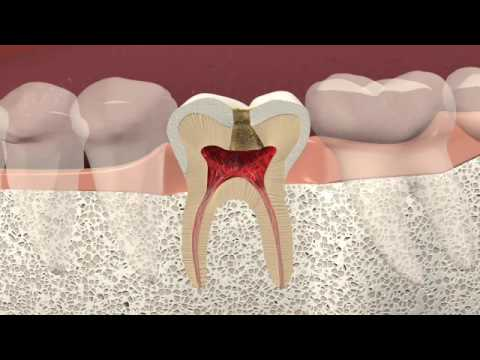 Specialty Dentist Milford OH   Cincinnati Dental Services
