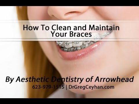 How To Clean and Maintain Your Braces | Aesthetic Dentistry of Arrowhead