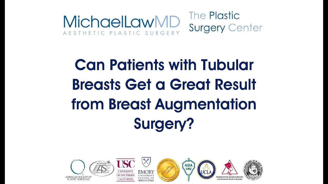 Tubular breasts and breast augmentation