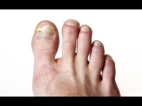 Causes, Symptoms And Treatment For Foot Fungus