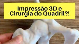 Planejamento com Impressão 3D para a Artroscopia do Quadril.