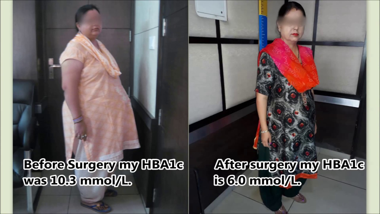 Control Of Diabetes After Mini Gastric Bypass Best Metabolic Surgery