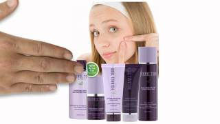 Reasons for Pimples? Learn How to Save 20 to 50% on Acne Treatment Today! Thumbnail