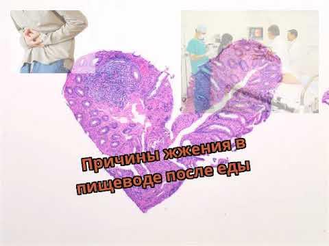 Болит в грудной клетке после еды