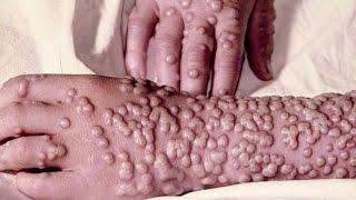 【閲覧注意】悪魔の病気 天然痘