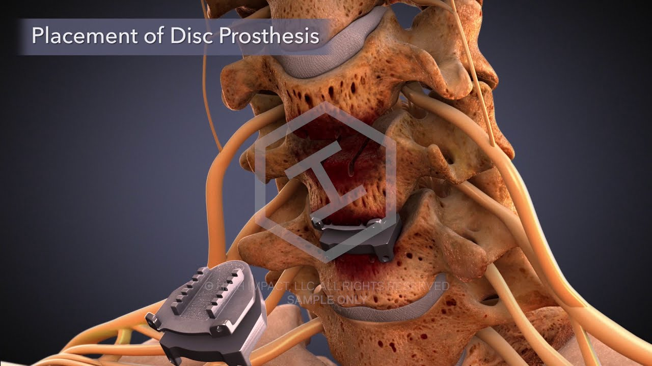 $2.25M Settlement on $8,700 Offer: Animating Cervical Disc Replacement