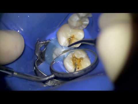 Лечение кариеса с использованием окклюзионного шаблона