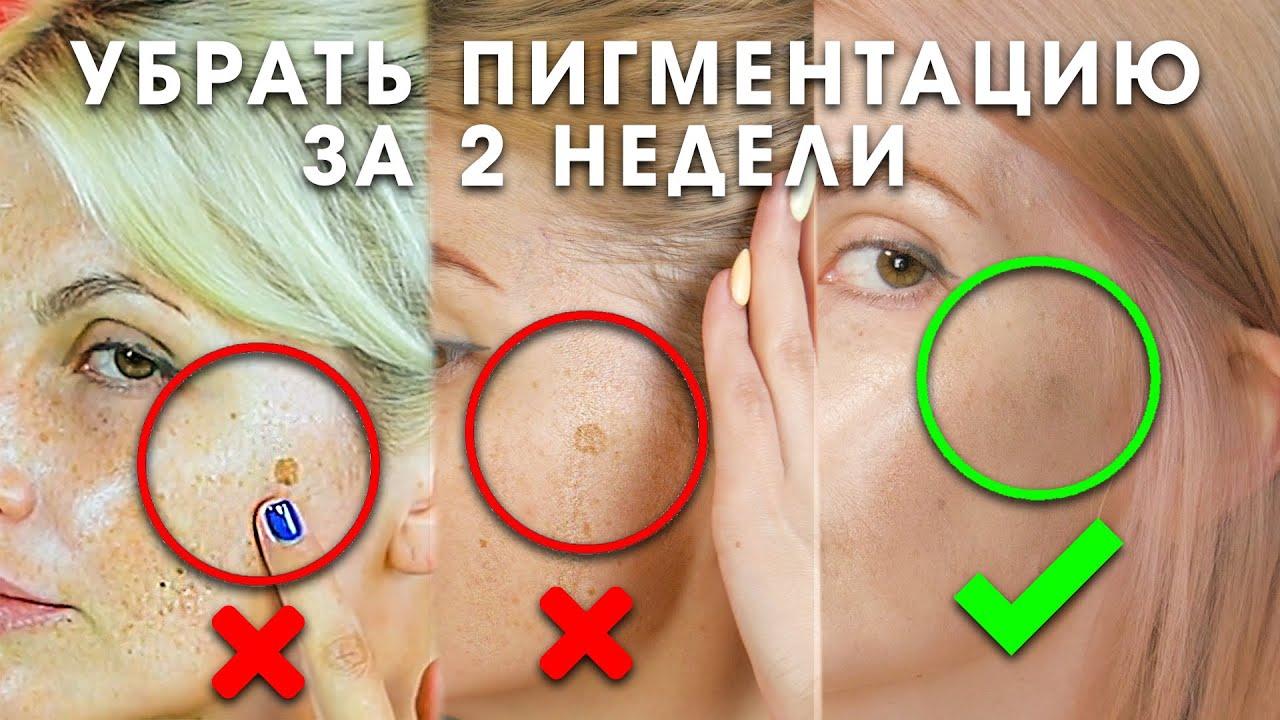 Как убрать пигментацию за 2 недели. Эффективная сыворотка для отбеливания кожи и следов от акне.