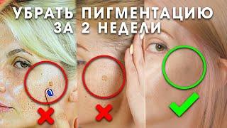Как убрать пигментацию за 2 недели Эффективная сыворотка для отбеливания кожи и следов от акне