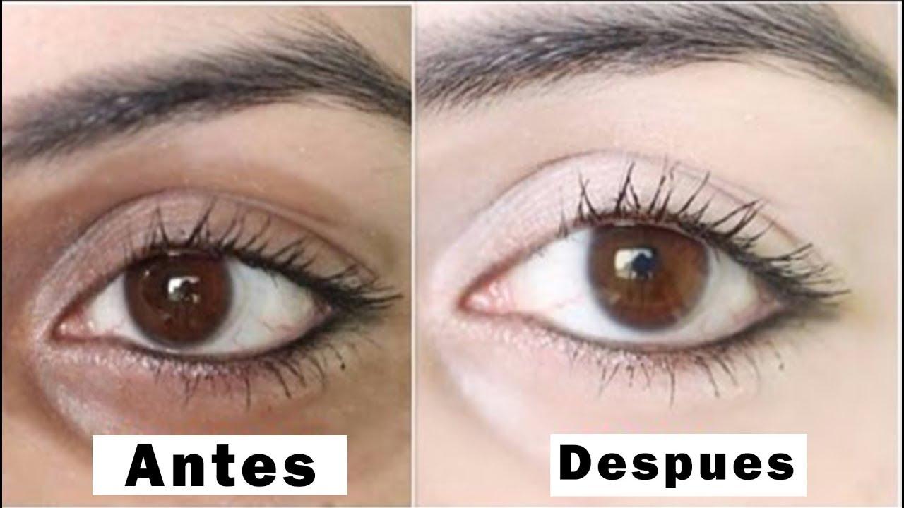 Tratamientos naturales para las bolsas de los ojos