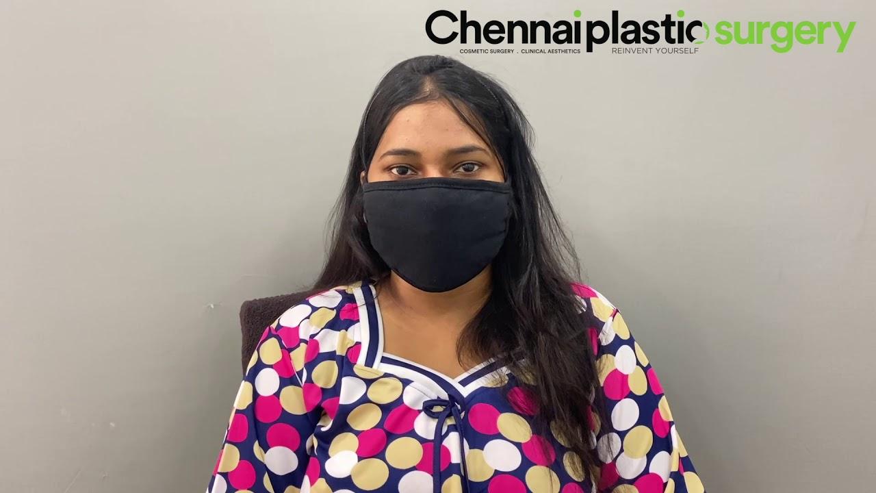 Liposuction Client's Video Testimonial - Chennai Plastic Surgery