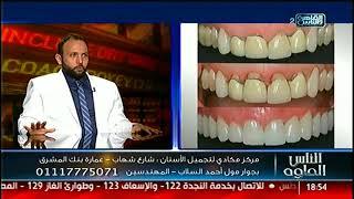 الناس الحلوة | هل الابتسامة واحدة تصلح لجميع الحالات مع د. كريم مجادى