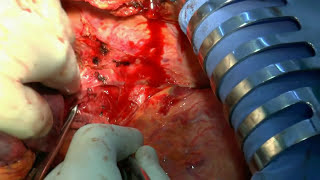 Left Hepatectomy for HCC. Moderataly Severe Cirrhosis (Class B)