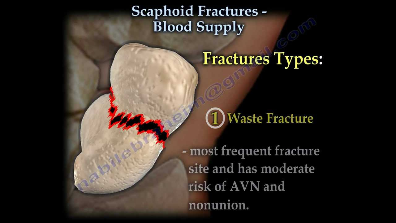 Scaphoid Fractures Blood Supply - Everything You Need To Know - Dr ...