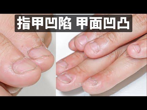 指甲凹陷 甲面凹凸|指甲矯正案例