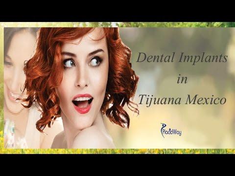 Amazing Dental Implants Done in Tijuana Mexico