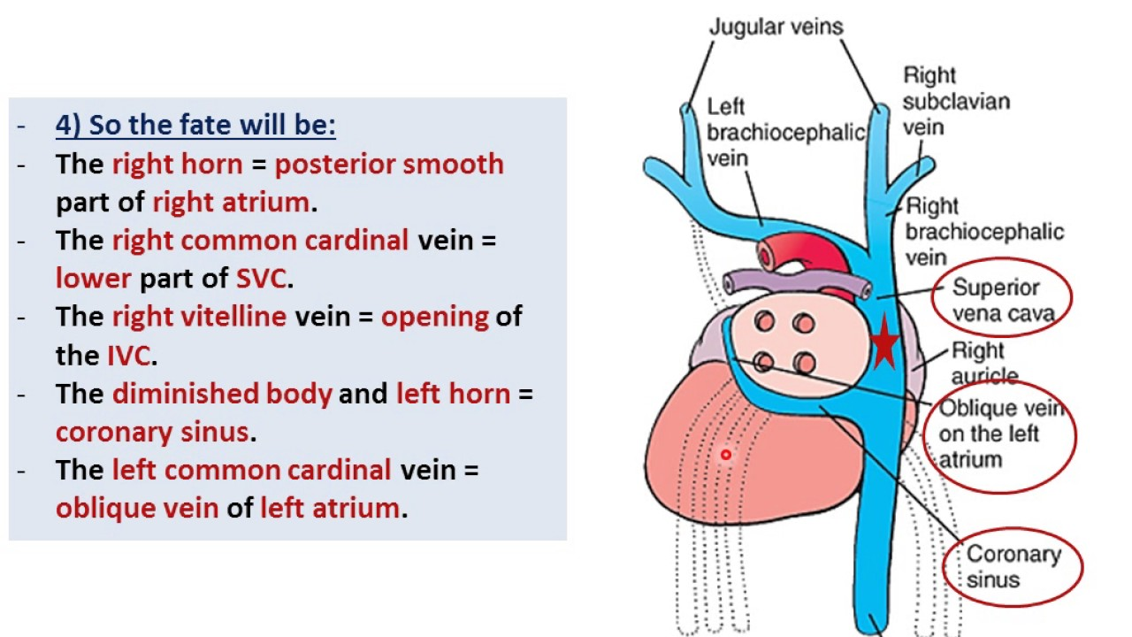 Embryology of the Heart - Sinus Venosus (Dr. Ahmed Farid ...  Sinus Venosus Asd