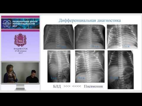 Н.А. Ильина - Пневмонии у детей и новорожденных