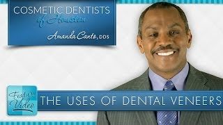 The Uses of Dental Veneers Thumbnail