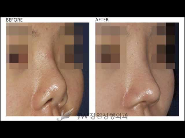 [korean cosmetic surgery reoperation] revision, second surgery, plastic surgery side effect