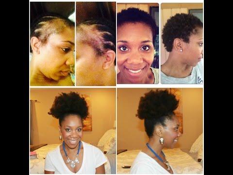 Fight Alopecia Naturally | 10 Steps To Restoration